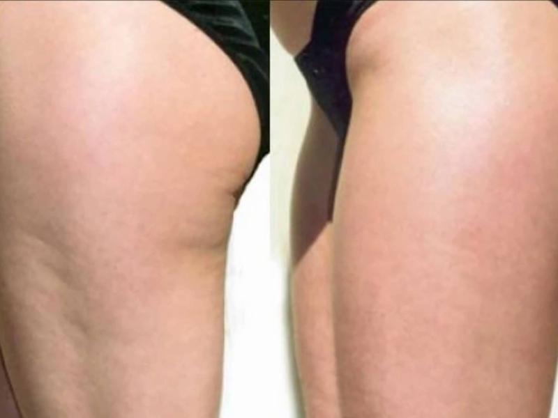 Антицеллюлитные обертывания для похудения