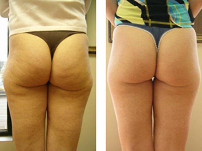 целлюлит фото до и после фото